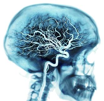 Bệnh Alzheimer's âm thầm mà nguy hiểm như thế nào 3