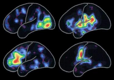 Bệnh Alzheimer's âm thầm mà nguy hiểm như thế nào 12