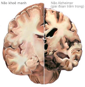 Bệnh Alzheimer's âm thầm mà nguy hiểm như thế nào 14
