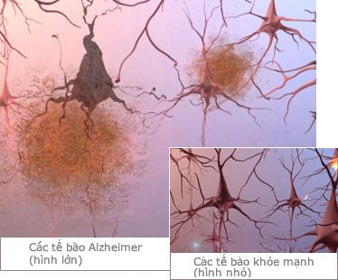 Bệnh Alzheimer's âm thầm mà nguy hiểm như thế nào 15
