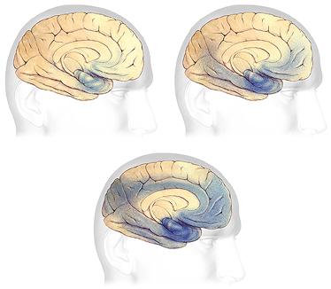 Bệnh Alzheimer's âm thầm mà nguy hiểm như thế nào 17