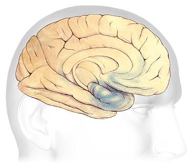 Bệnh Alzheimer's âm thầm mà nguy hiểm như thế nào 18