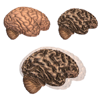 a look at the effects of the alzheimers disease Alzheimer's disease is characterised by cognitive impairment and memory loss   to look further at the differences seen in the brains of people with alzheimer's.