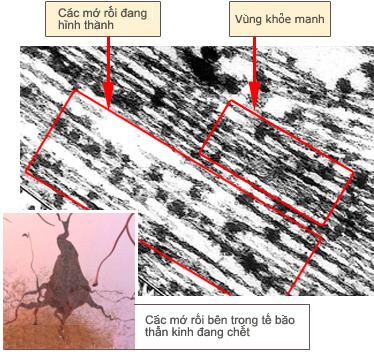 Tangle detail (under electron micrograph)