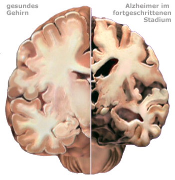 Gesundes Gehirn gegen Alzheimer Gehirn | Alzheimer\'s Association