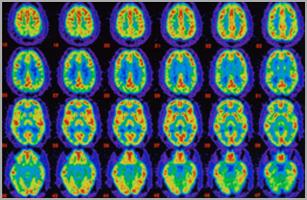 Forschung demenz bachelorarbeit in 30 tagen