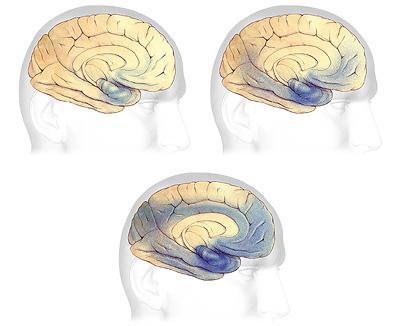 What is Alzheimer's | Alzheimer's Association
