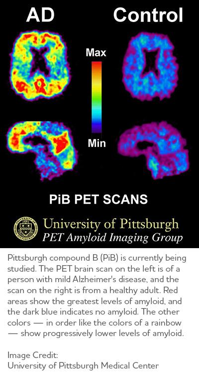 Brain Imaging Studies Seek Signs Of >> Earlier Diagnosis Alzheimer S Association